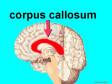 Corpus_callosumweb